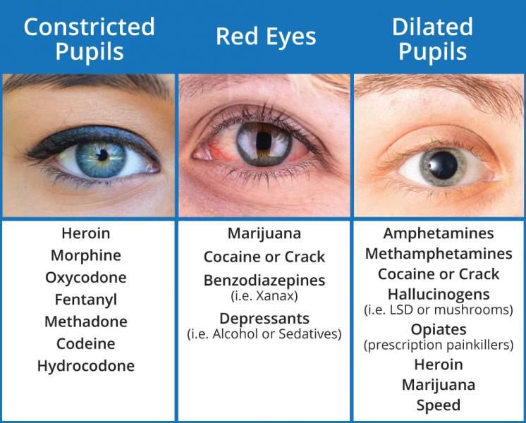Pupil Dilation Drug Chart