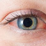 telltale signs drug abuse red eye