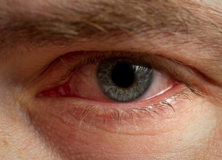 red eyes telltale signs of drug abuse
