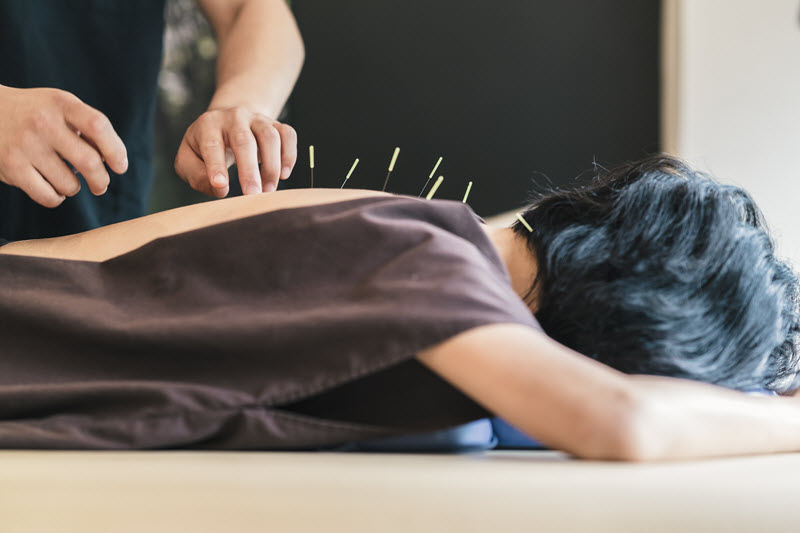 acupuncture an alternative to opioids