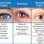 Pupil Dilation Drug Chart
