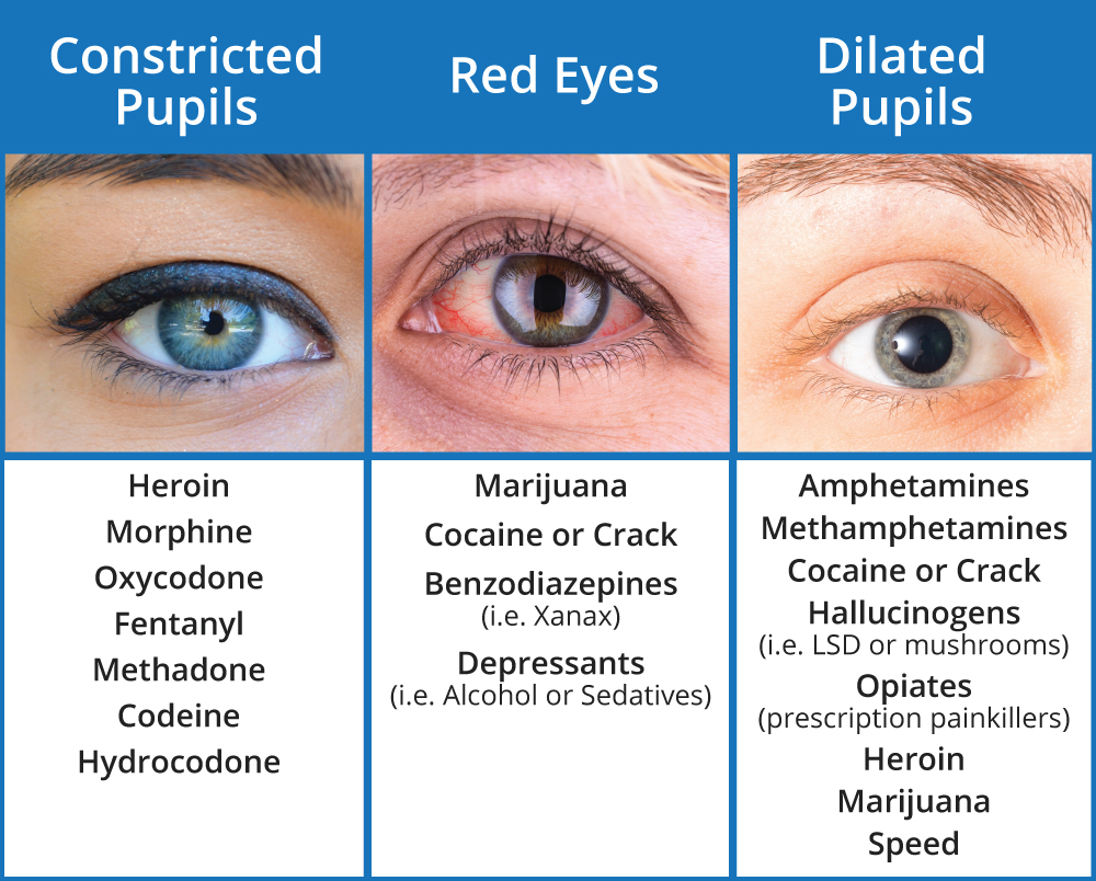 What Drugs Cause Red Eyes and Dilated Pupils? | Sober CollegeDilated Pupils Drugs